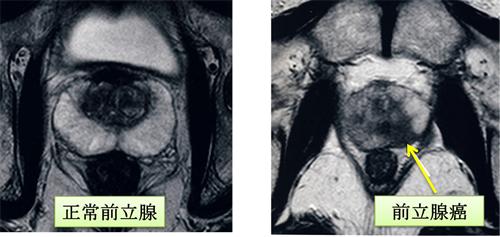 2次検査として一般的ではありませんが当科では生検前に前立腺造影MRIを施行しています。これは前立腺生検の際の参考とするため および生検の影響のない状態での正確な